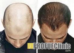 Hajbeültetés, hajátültetés Borsod-Abaúj-Zemplén Megyében - Miskolc