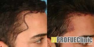 Hajátültetés - hajbeültetés - hajtranszplantáció előtte utána képek