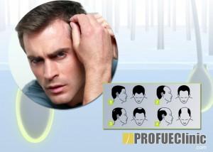 Hajátültetési - hajbeültetési - hajtranszplantációs technikák és eljárások