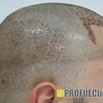 FUE hajátültetési módszer