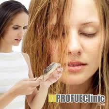 Női Kopaszodás avagy az Androgenetikus Alopécia a Nőknél